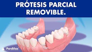 Prótesis parcial removible ©