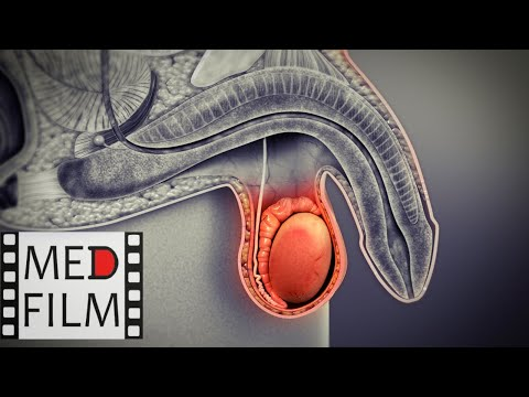 Лекарства от гнойного простатита
