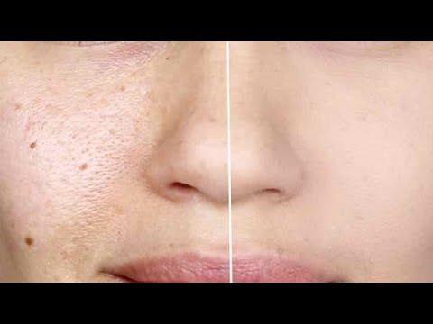 La cosmétologie de la pigmentation sur la personne