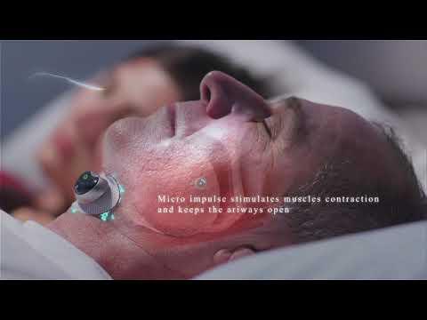 Snore Circle Smart Anti-Snoring Muscle Stimulator-GadgetAny