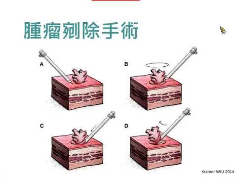 2021.4.24早期膀胱癌之手術治療(林嘉彥醫師)