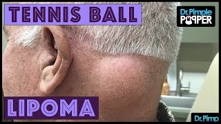 A Tennis Ball Lipoma on Post Neck!