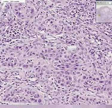 Papilloma of bladder histology
