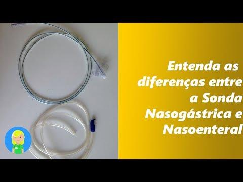 Entenda as Diferenças entre a Sonda Nasogástrica e a Sonda Nasoenteral
