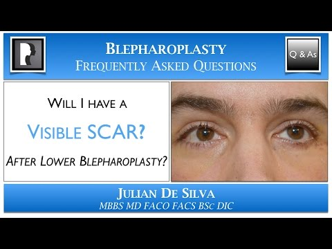 Will I have a Visible Scar after Lower Blepharoplasty? Scar after an lower eyelid lift?