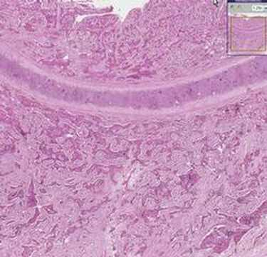 Cancer colon nutrition