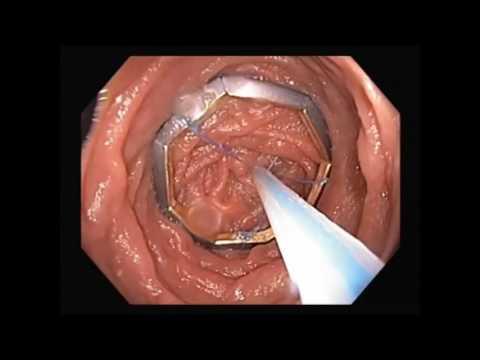 Rossz szag a ráktól a szájból