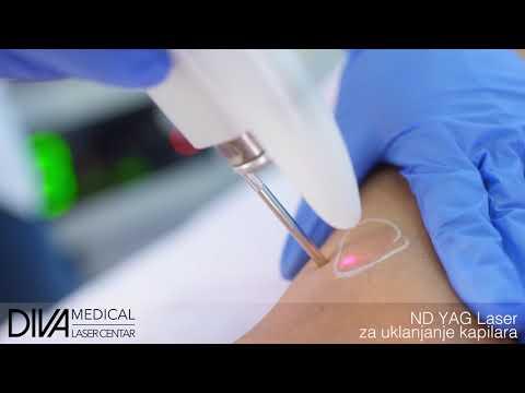 Ljekovitost grah hipertenzije