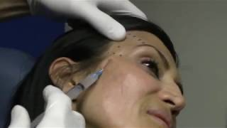 Temple Injections can help with signs of aging.