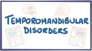 Temporomandibular joint dysfunction- causes, symptoms, diagnosis, treatment, pathology
