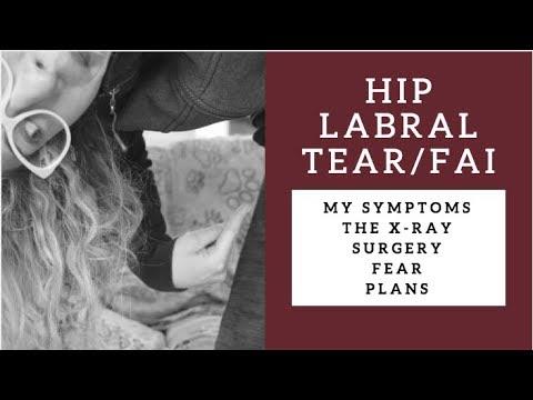 Il mal di schiena e come trattare gamba