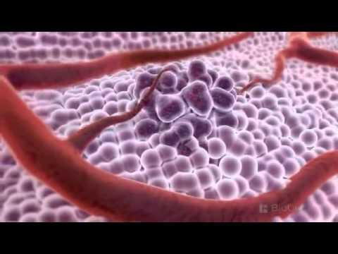 Gydymas prostatitas, atliekant ūmaus forma