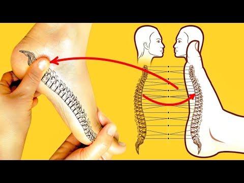 Болит поясница как лечить грыжу