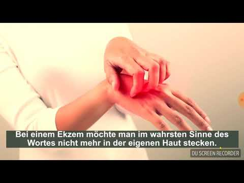 Das Ekzem der Hände die Behandlung von den Volksmethoden