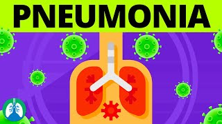 Pneumonia Overview | Causes, Symptoms, Diagnosis, and Treatment