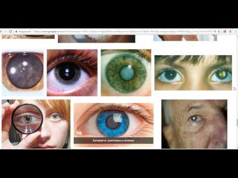 Астигматизм глаз у детей что это
