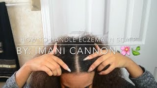 HOW TO HANDLE ECZEMA IN YOUR SCALP