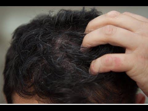 Saç Diplerinde Kaşıntı Tedavisi