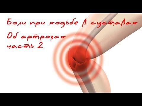 Артроз 2 степени тазобедренного сустава лечение народными