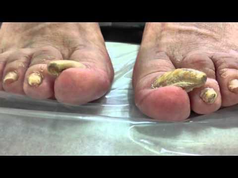 Curar las uñas en yaroslavle