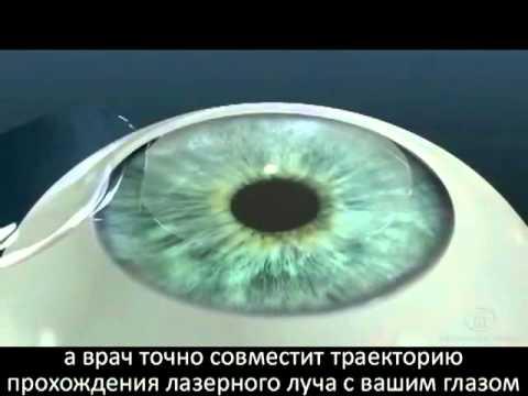 Лазерная коррекция зрения после 50