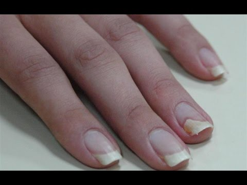 Los ungüentos del hongo en los pies bajo los dedos
