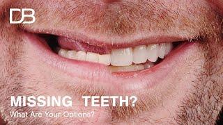 Options For Replacing Missing Teeth | An In Depth Look Reuben Sim