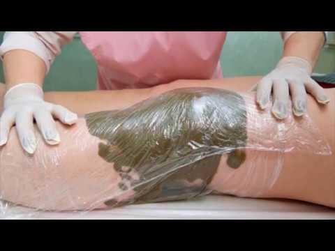 Dureri articulare și cauze ale spatelui inferior