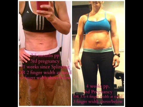 Body wraps untuk perut penurunan berat badan dan sisi di rumah setelah melahirkan