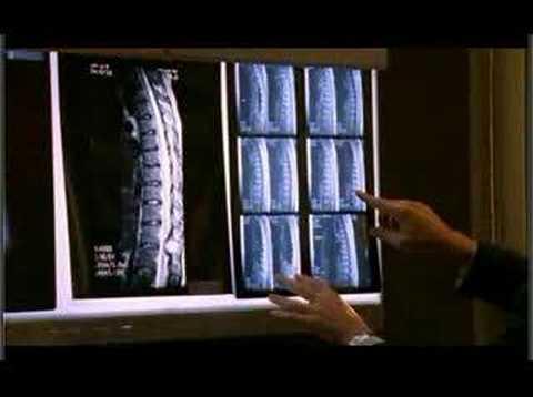 Le giunzioni tra le vertebre e nervatura