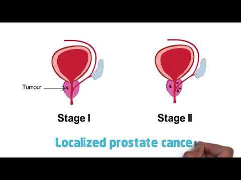 Hipertónia prosztatitis