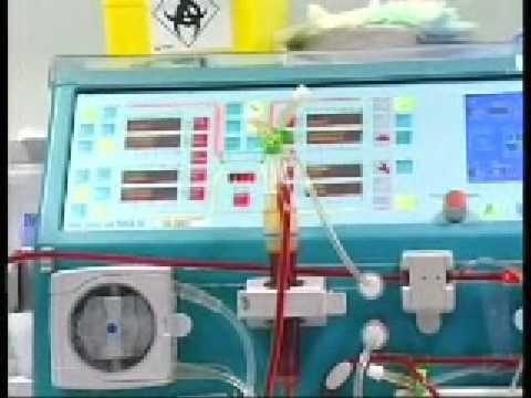 I bambini elettroforesi dibazola