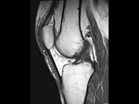 Lábízület betegségek