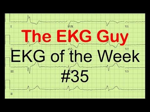 EKG of the Week #35