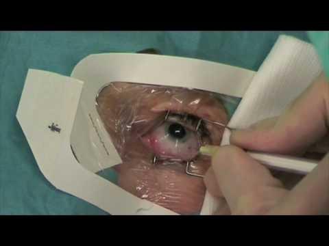 Phytotherapy in trattamento di varicosity