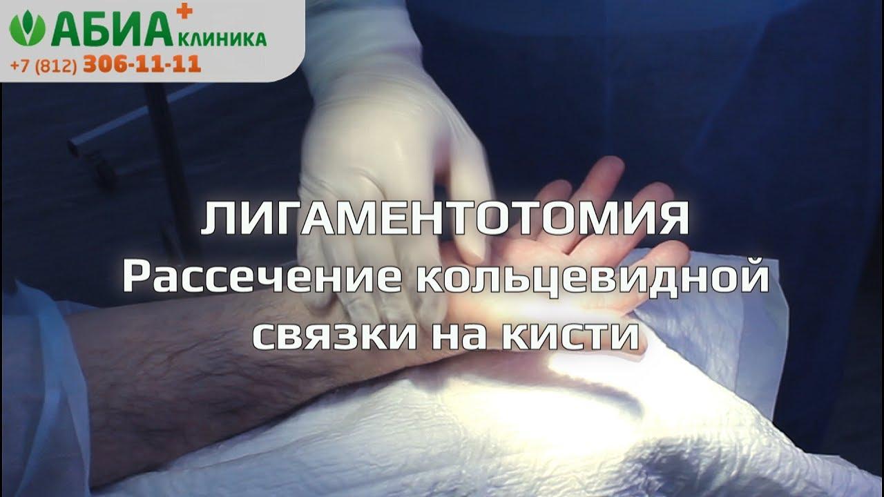 Лигаментотомия кисти