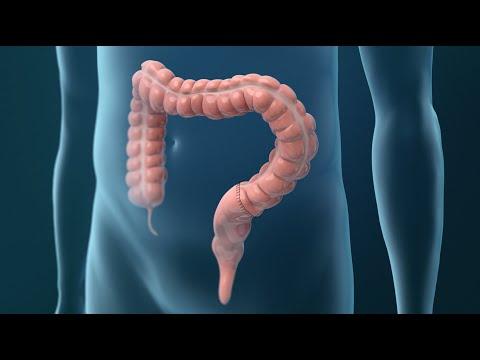 Giardioză cronică la adulți
