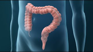Treatments for Colorectal Cancer