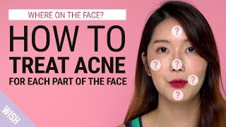 Acne 101 | Different Acne Meaning According to Different Parts of the Face | Wish Beauty 101