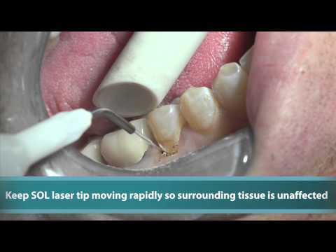 Case Study: Class 5 Gingivoplasty with SOL Laser from DenMat