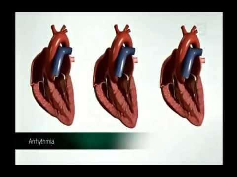 Tratamiento de combinación de la hipertensión