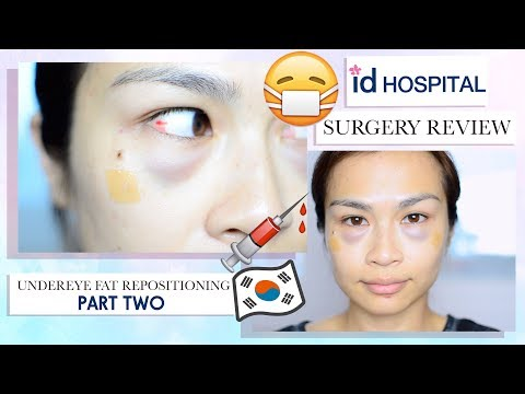 My Plastic Surgery Experience In Korea (Part 2)⎮Under Eye Fat Re-positioning/ Eye Bag Removal