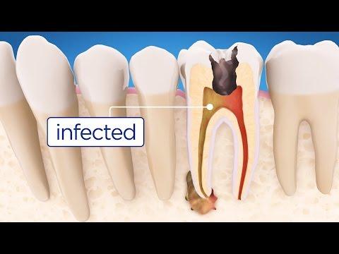 Πως οι οδοντίατροι σώζουν τα δόντια μας