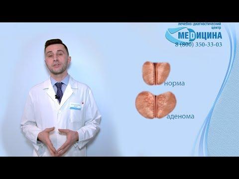 Как умирают люди с раком предстательной железы