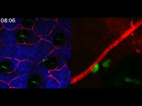 Visualisation of Skin Cells - ILC2