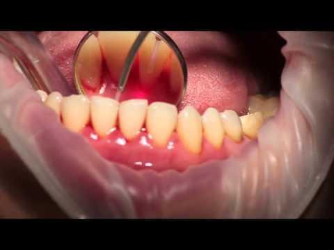 Применение лазера для лечения заболеваний пародонта