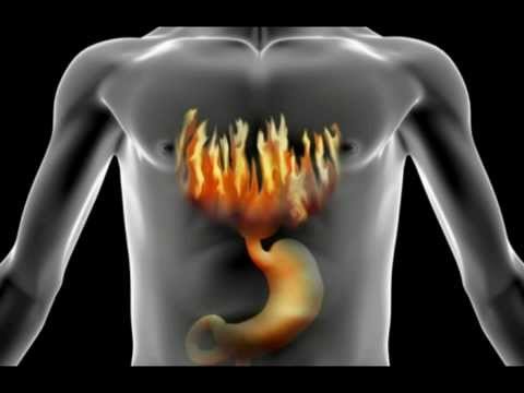 Video How To Treat, Cure & Stop Heartburn | Acid Reflux (My Story)