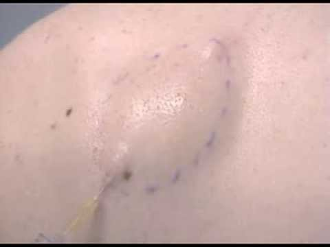 Video Removal of a Lipoma