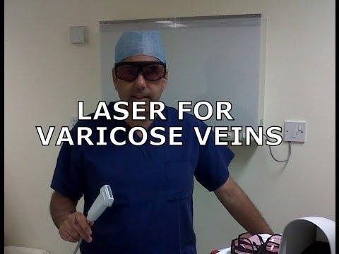 การผ่าตัดเพื่อเอาเส้นเลือดขอด