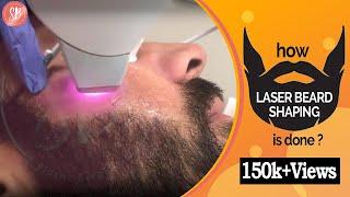 Permanent Laser Beard Shaping Treatment For Men | Beard Laser Hair Removal Men